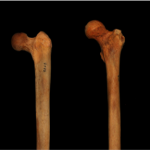Femur head variations